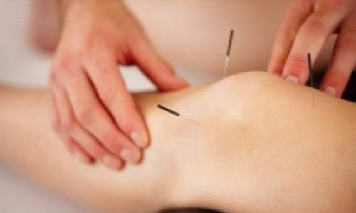 Acupuncture for pain, stress, anxiety, depression, fertility and infertility - Alternative Medicine solutions!